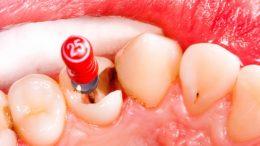 Kanal Tedavisi Yapılan Dişin Ağrıması Nedenleri