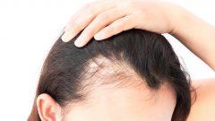 Saç Dökülmesine İyi Gelen Yağlar Nelerdir